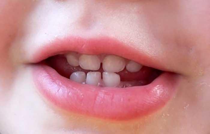 دندان کودک