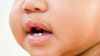 تصویر از تب دندان در کودکان: همه نکات مهم که باید بدانید!