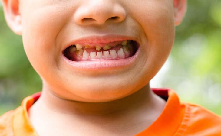 کودک 2 ساله و دندان خراب
