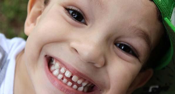 دندان سالم کودک سه ساله