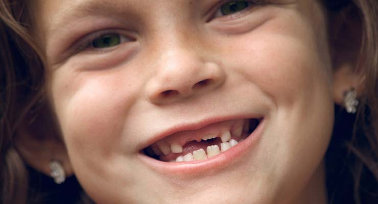 دندان شکسته کودک