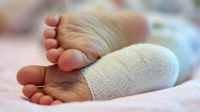 تصویر از درد پا در کودک ۲ ساله، علت ها، بهترین درمانهای خانگی +نکات مهم