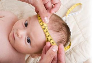تصویر از رشد زیاد دور سر نوزاد چه دلیلی دارد؟ زمان مراجعه به پزشک