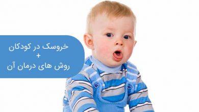 تصویر از علت خروسک در کودکان، علائم و ۳ روش درمان موثر