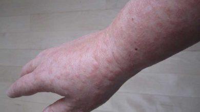 حساسیت پوستی در بارداری